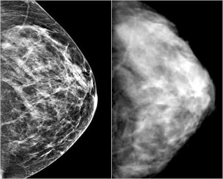 Mammogram oud en nieuw